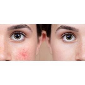 Уход за кожей лица при куперозе